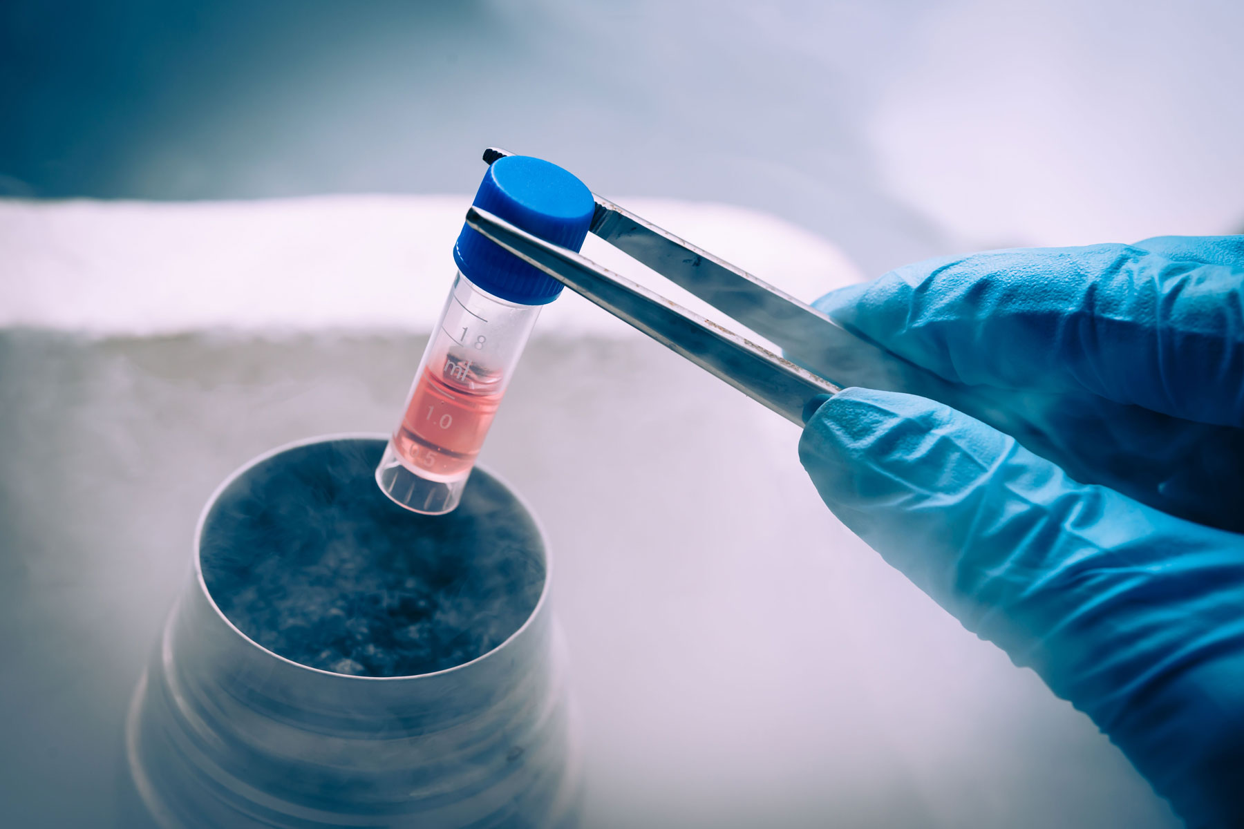 Cryopreservation-Sperm-Embryo-Freezing